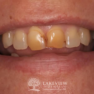 before-after-cosmetic-dentistry-discolored-bonding-before