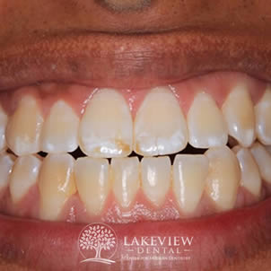 before-cosmetic-dentistry-bleach-stain-front-tooth