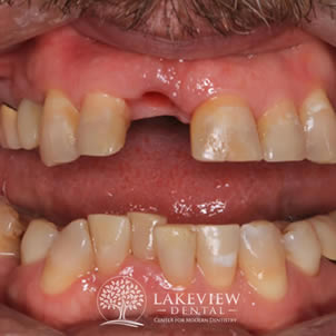 before-cosmetic-dentistry-front-tooth-dental-implant